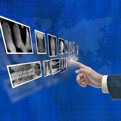 Big Data Internet de las cosas Sanidad